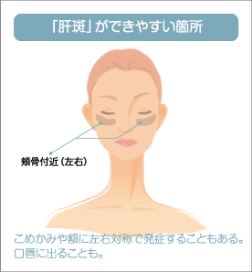 「肝斑」ができやすい箇所 頬骨付近(左右) こめかみや額に左右対称で発症することもある。口唇に出ることも。